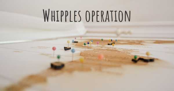 Whipples operation
