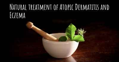 Natural treatment of Atopic Dermatitis and Eczema
