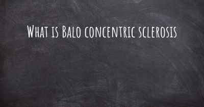 What is Balo concentric sclerosis