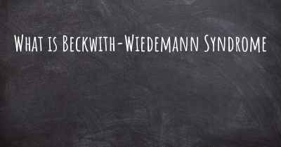 What is Beckwith-Wiedemann Syndrome