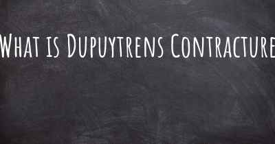 What is Dupuytrens Contracture