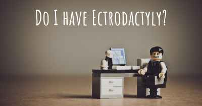 Do I have Ectrodactyly?
