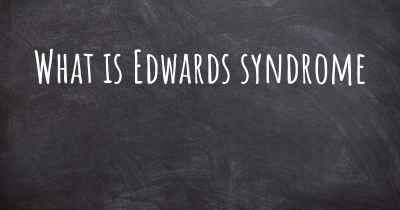 What is Edwards syndrome