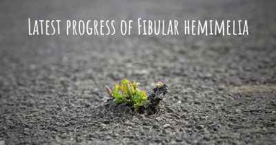 Latest progress of Fibular hemimelia