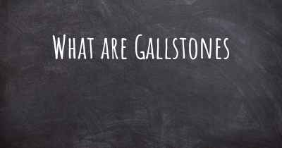 What are Gallstones