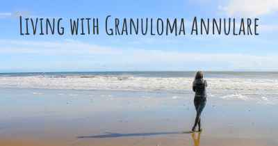 Living with Granuloma Annulare