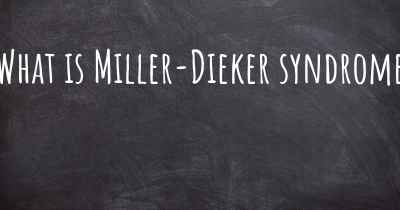 What is Miller-Dieker syndrome