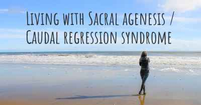 Living with Sacral agenesis / Caudal regression syndrome