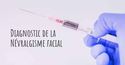 Diagnostic de la Névralgisme facial