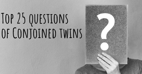 Conjoined twins top 25 questions